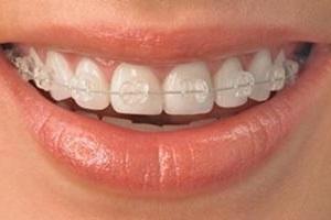 aparelho_dental